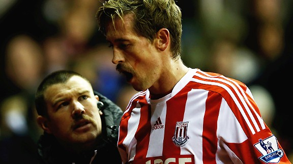 Peter Crouch goes off against Newcastle after a blow to the mouth