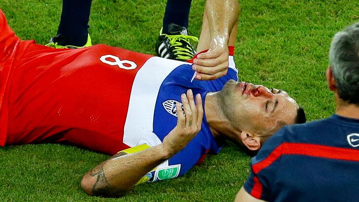 Clint Dempsey suffered the broken nose after taking a shin to the face from Ghana's John Boye in both teams' World Cup opener.
