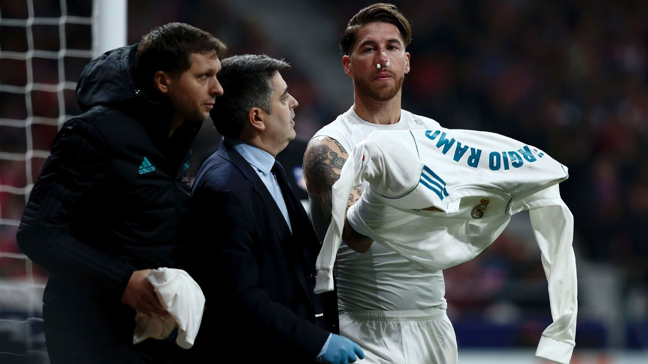 Real Madrid captain Sergio Ramos suffered a fractured nose during the derby at Atletico Madrid