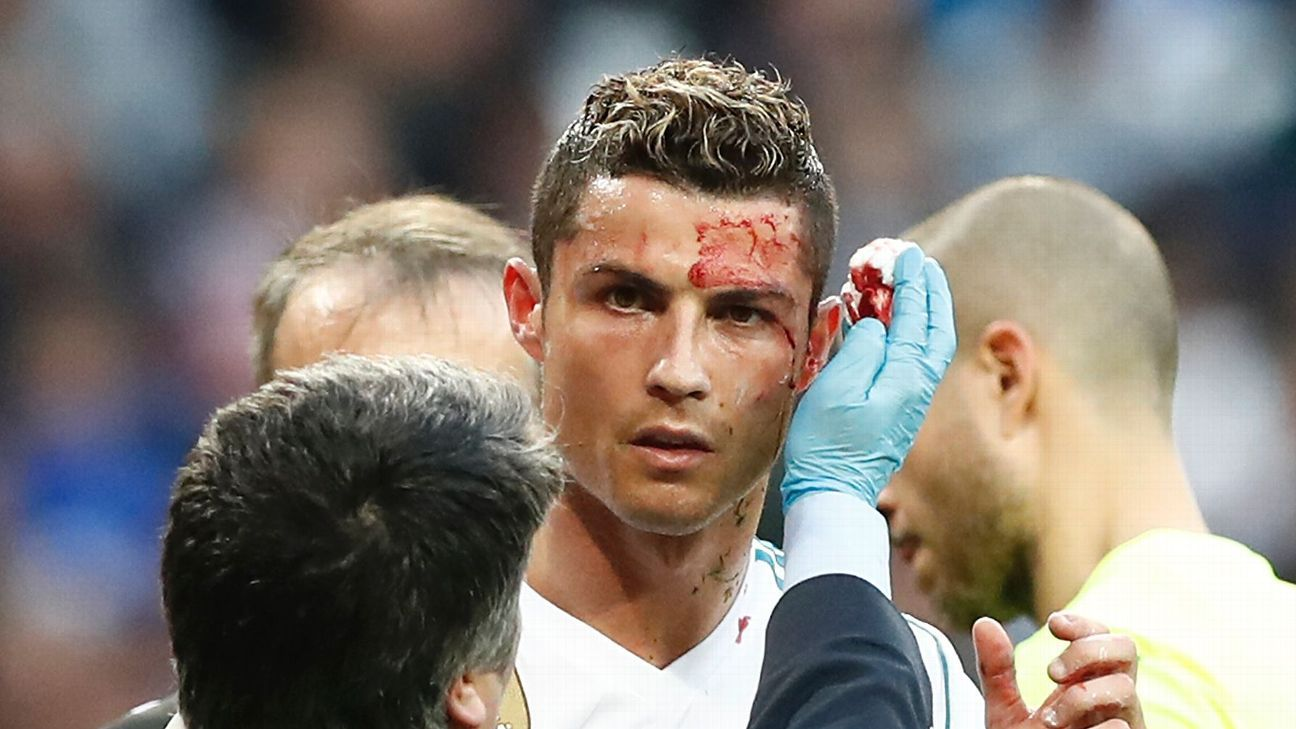 Real Madrid show Cristiano Ronaldo's cut face was a close call