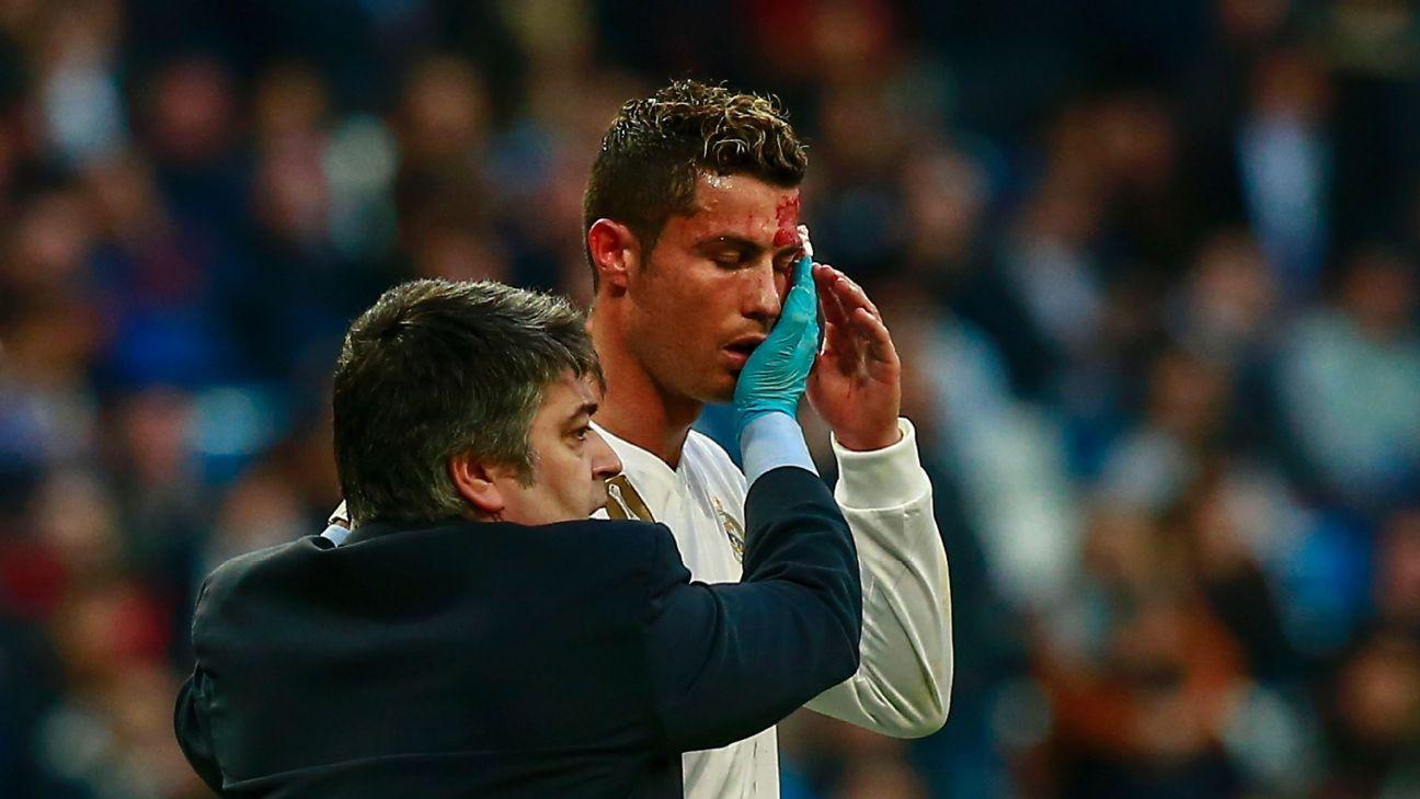 Battered Real Madrid should not overlook an upstart Leganes squad - ESPN FC 014155d10297c