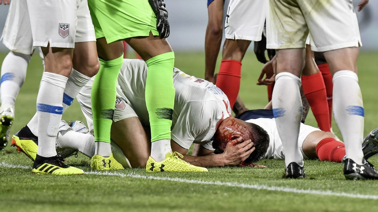Matt Miazga was left bloodied after a collision with France's Olivier Giroud.