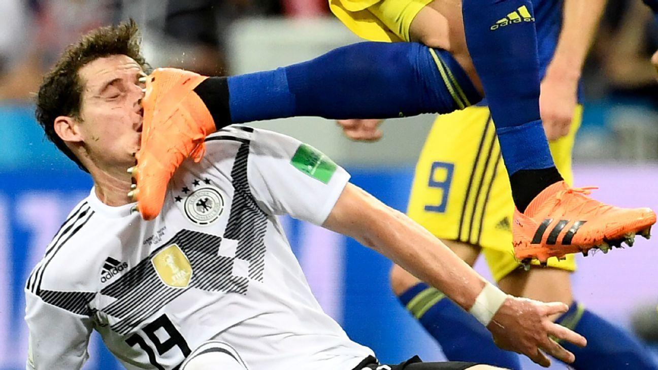 Sebastian Rudy broke his nose against Sweden.