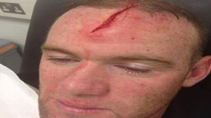 Wayne Rooney sustained the injury in a training ground accident with Phil Jones.