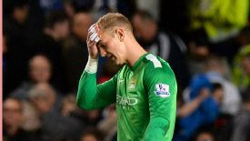 Joe Hart has endured a difficult start to the season.