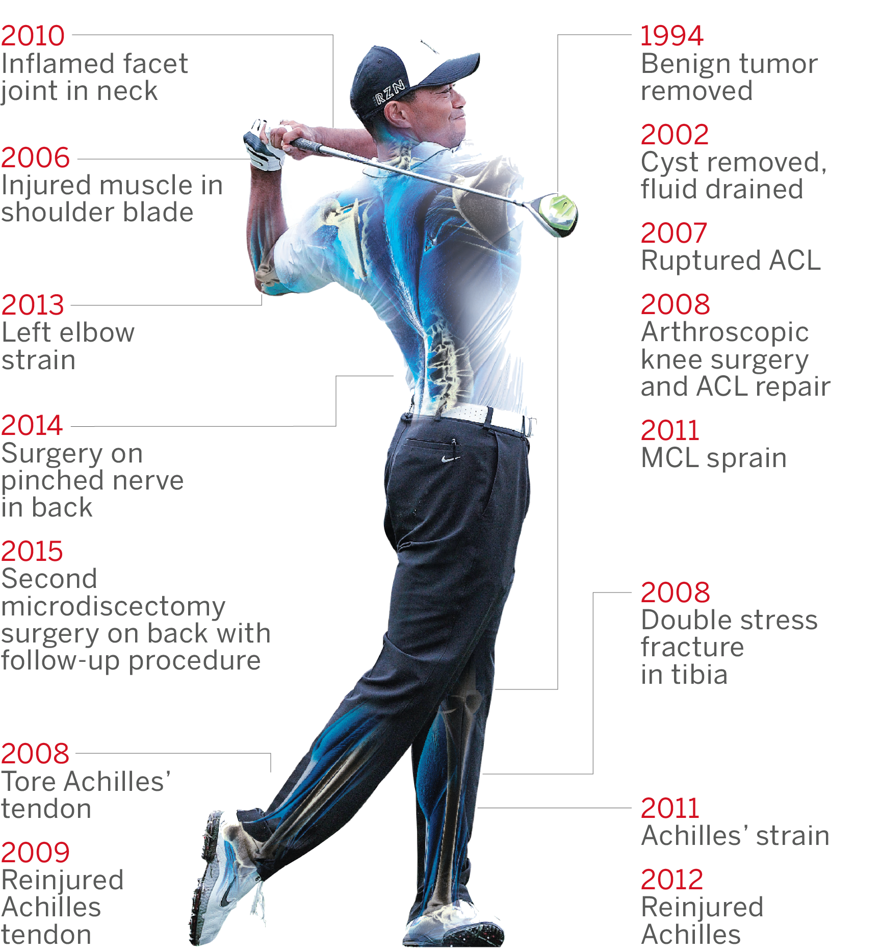 Tiger Woods Injury Timeline Abc News
