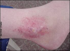 Curt Schilling's ankle