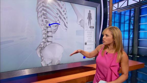 A visual look at Romo's L1 compression fracture