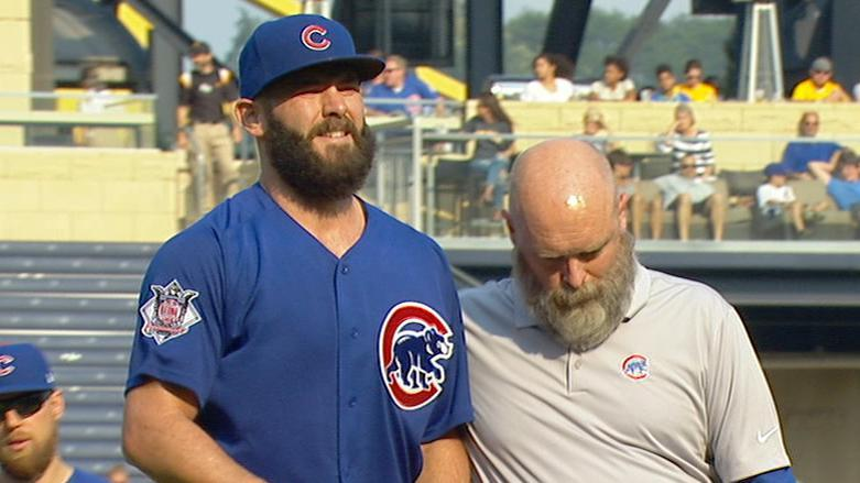 Cubs' Arrieta leaves game with suspected leg cramps