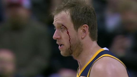 Ingles bloodied after hit to head