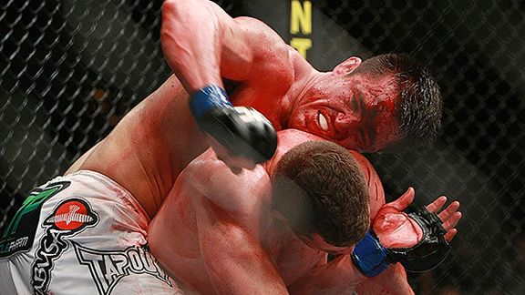 FanHouse: Silva taps out Sonnen in UFC stunner