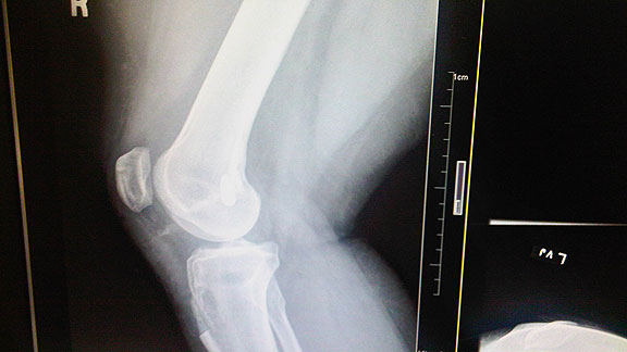 ACL XRay