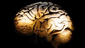 Estudio Cerebro