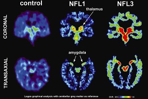 CTE in Brain