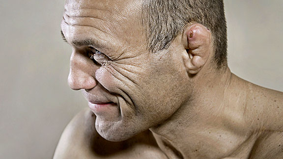 UFC fighter Randy Couture is famous for cauliflower ears - ESPN ...