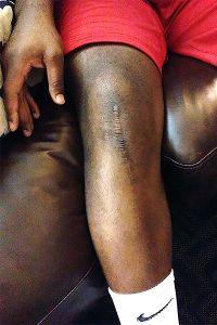 D.T. Shackelford's knee