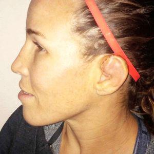 Leslie about 4 days after her ear ruptured
