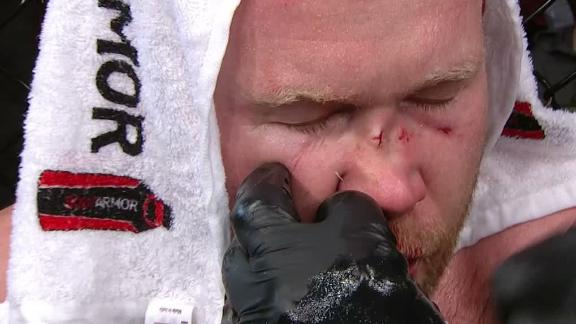 Boetsch suffers broken nose in loss