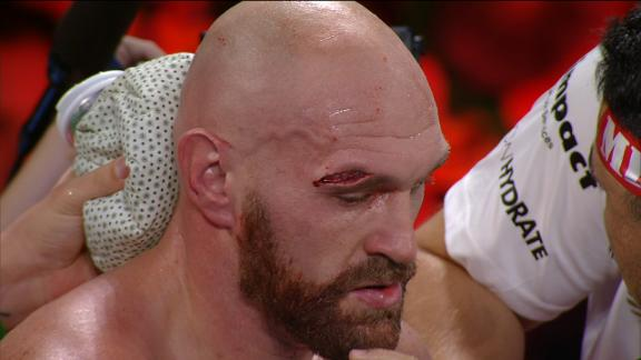 Fury sustains massive cut above eye vs. Wallin
