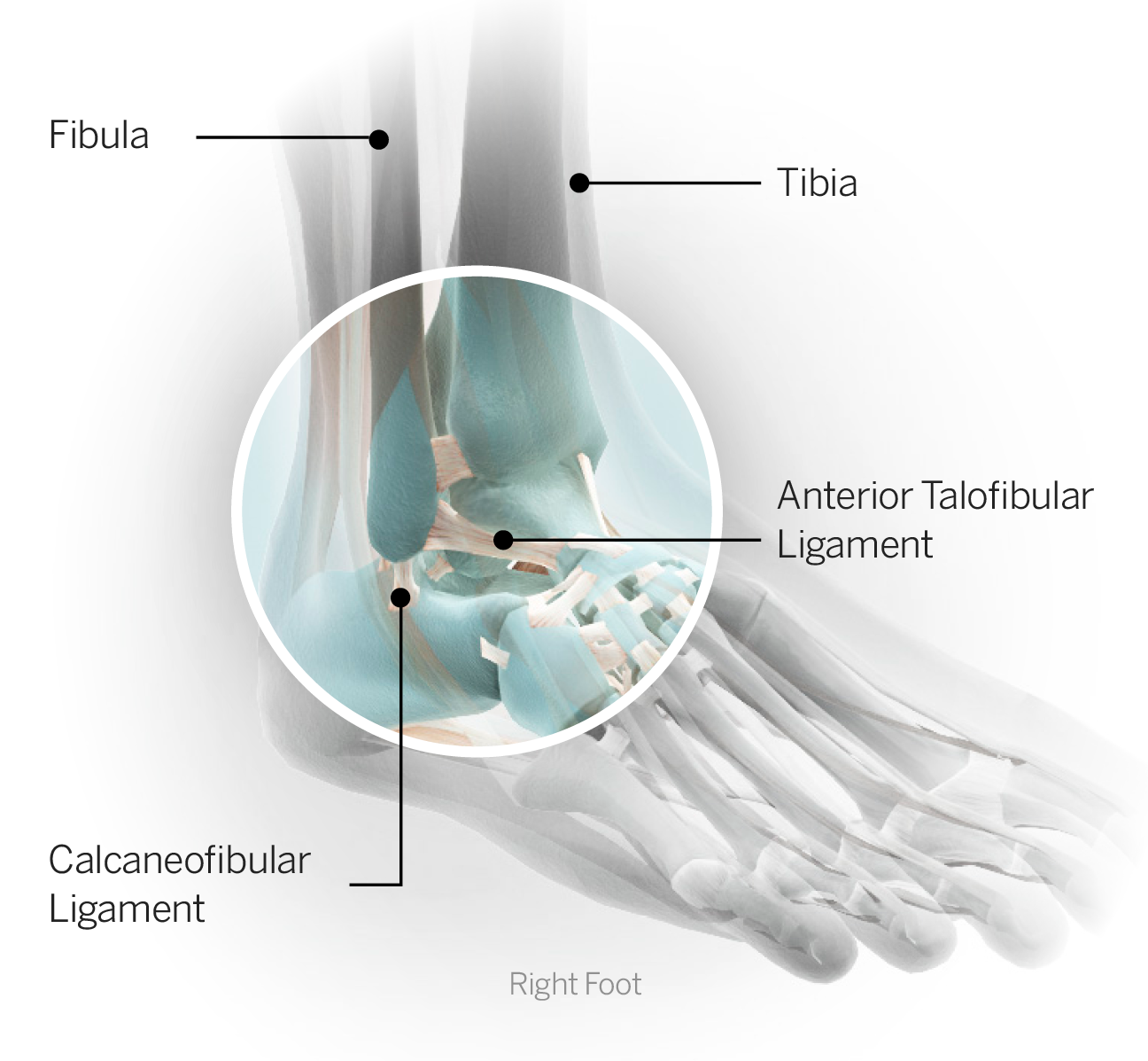 Sports Injury Glossary Everything You Need To Know From Head To