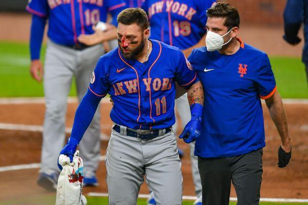Mets' Pillar has multiple nasal fractures after HBP